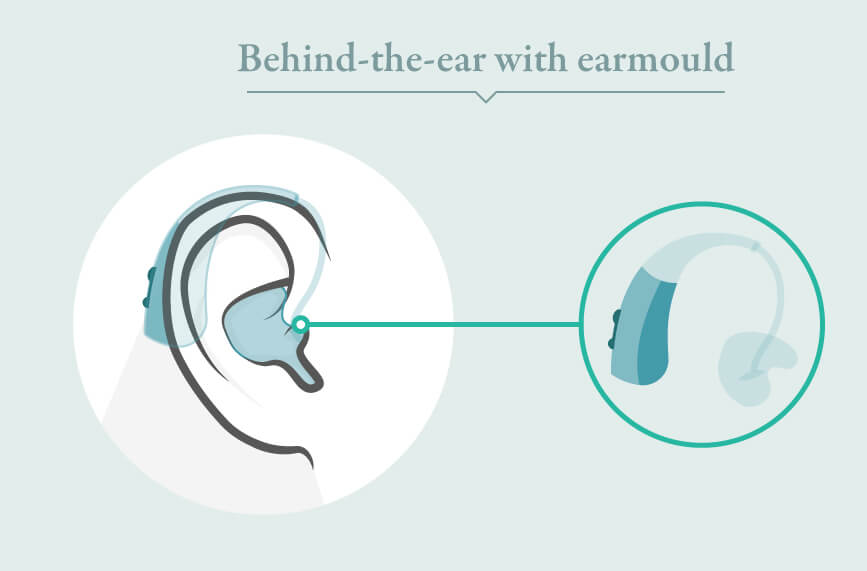 behind the ear with earmould hearing aids